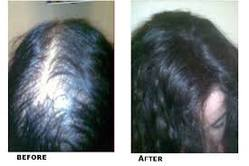 Hair loss treatment by stem cell