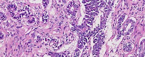 prepared microscope slide e slides of pathology systemic pathology