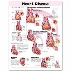 Heart Disease Charts