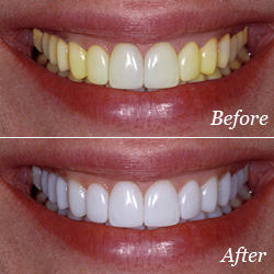 Root Canal Treatment Dental Implants Service Provider From Chennai