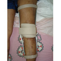 Push Knee Splint
