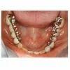 fixed partial denture