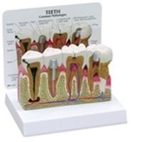Diseased Teeth And Gums Model