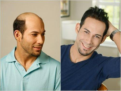 Hair transplant uk prices
