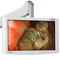 NDS Medical Grade Monitors
