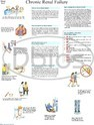 Nephrology Charts