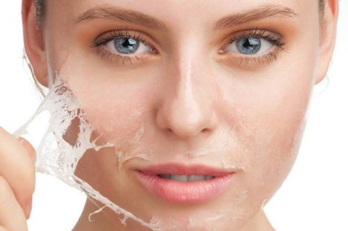 dry spots on face treatment