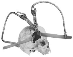 Leyla Brain Retractor with Double Wire