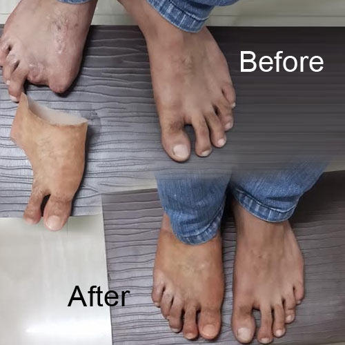 Prosthesis india what happens during each stage in the process of photosynthesis