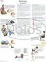 Neurology Charts