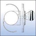 PMMA Intraocular Lenses
