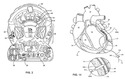 Patent Drawings