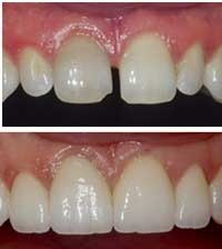 Closure Of Spaces Between Teeth Gap Closure With