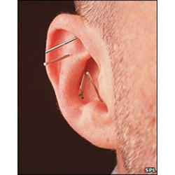 acupuncture ear needle