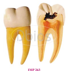 Molar With Caries
