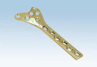 Condylar Buttress Plate