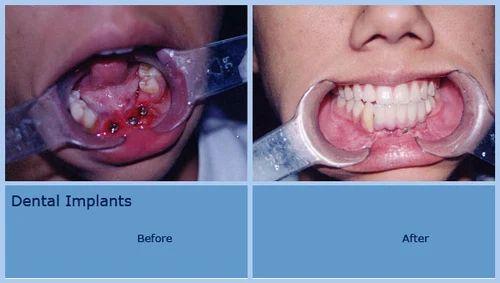 Hyperdontia Dental implant... hyperdontia