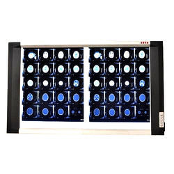 LED X Ray Double Film Viewer with Dimmer