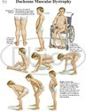 Orthopedic Patient Education Chart