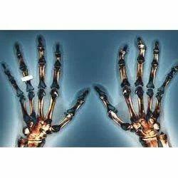 Rheumatoid Arthritis Physiotherapy