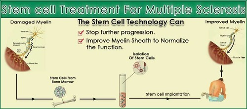 Adult stem cells to treat multiple sclerosis — photo 2