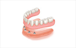 Implant Supported Removable Teeth Treatment Service