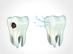 Impacted Tooth removal