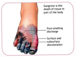 Service Provider Of Diabetic Foot Clinic Symptoms Of Diabetic