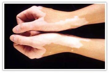 Leucoderma & Vitiligo, लुकोडर्मा उपचार की