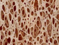 Tissue and Bone Bank