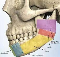 Facial Trauma Fracture Treatment