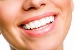 Periodontics Gum Dental Treatment Services