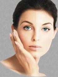 Skin Whitening Service