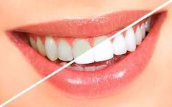 Teeth Whitening Services