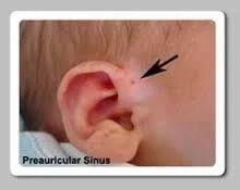 Sinus Surgeries