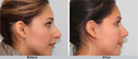 Nose Aesthetic Surgery