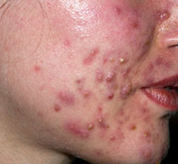 Acne Treatment Services In India