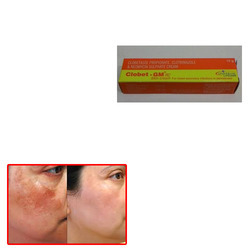 Clobet Skin Cream for Pigmentation