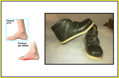 Shoes For Flat Feet (Fallen Arches