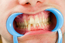 Gum/Periodontal Surgeries