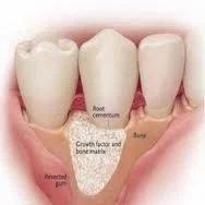 Periodontia (gum Diseases)