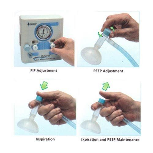 Emergency Neonatal Resuscitator