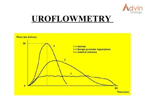 Urology Products - Uroflowmetry Equipment Manufacturer from Ahmedabad