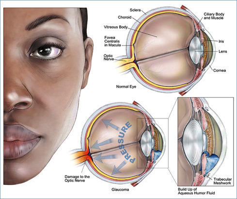 Homeopathic Treatment of Glaucoma or Ablepsia or Amaurosis