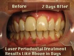 Laser Gum Disease Treatment Dental Treatment Services