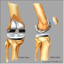 Knee replacement surgery in rajkot total knee replacement ccuart