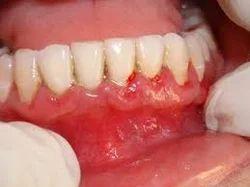 Flap & Gum Surgeries