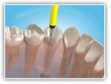 Single Visit Root Canal Treatment