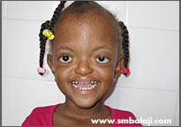 Pfeiffer Syndrome Medical Treatment Services Balaji Dental
