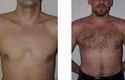Body Hair Transplants